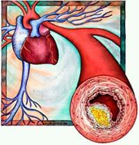 kolesterol2 Kolesterol Tinggi